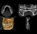CT診断イメージ
